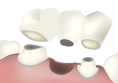 Dental Bridge by Palo Alto Oral Health